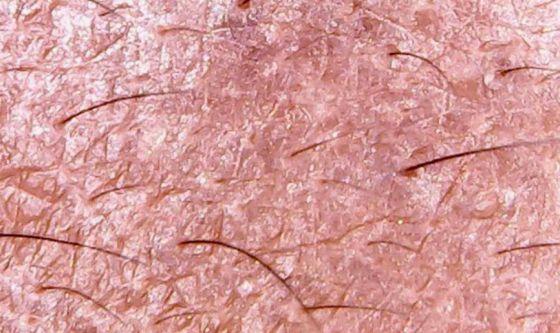 Человеческая  кожа может быть  распечатана  на биопринтере